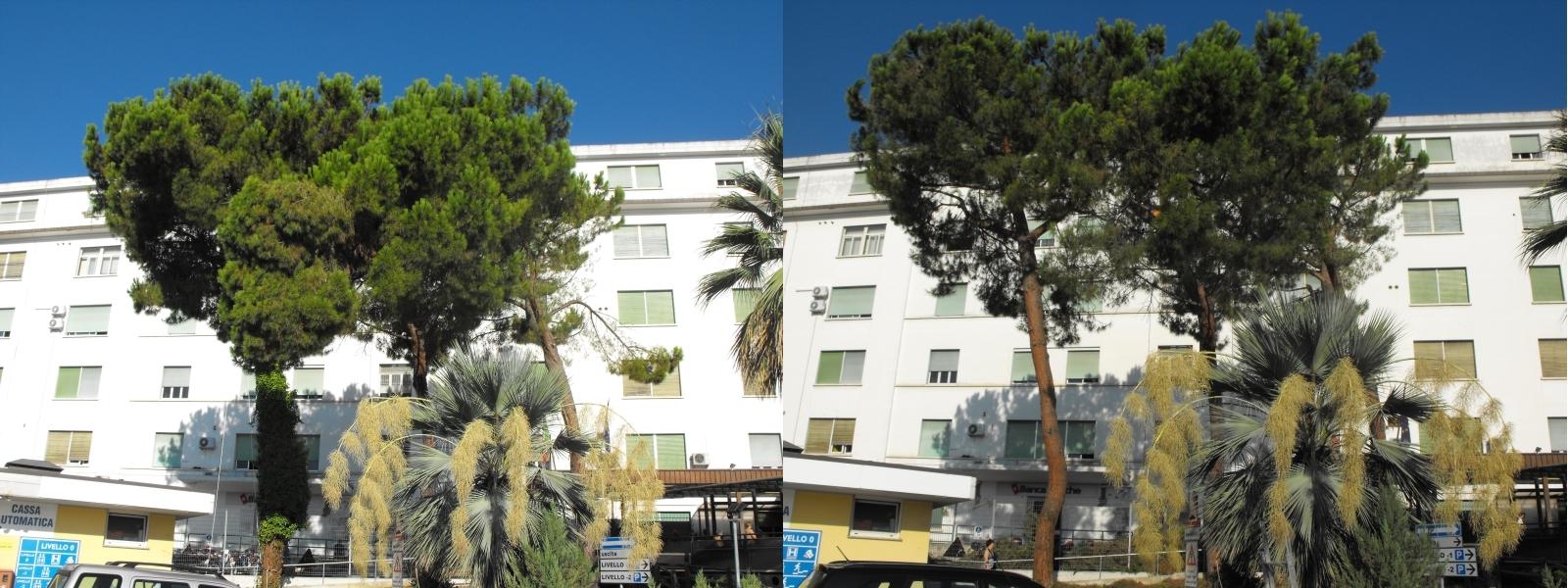Prima e Dopo - San Benedetto del Tronto - Ospedale Civile